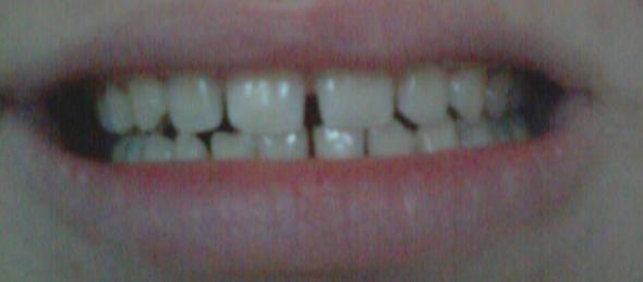 ....... - (Zähne, Zahnarzt)