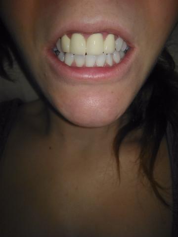 Zähne... - (Zähne, Aussehen, Zahnarzt)
