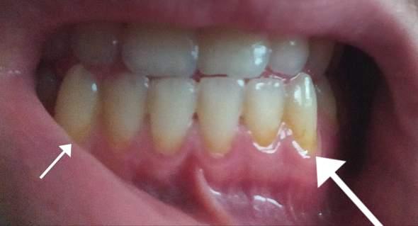 Zahn bildet plötzlich gelbung in der nähe Zahnfleisches