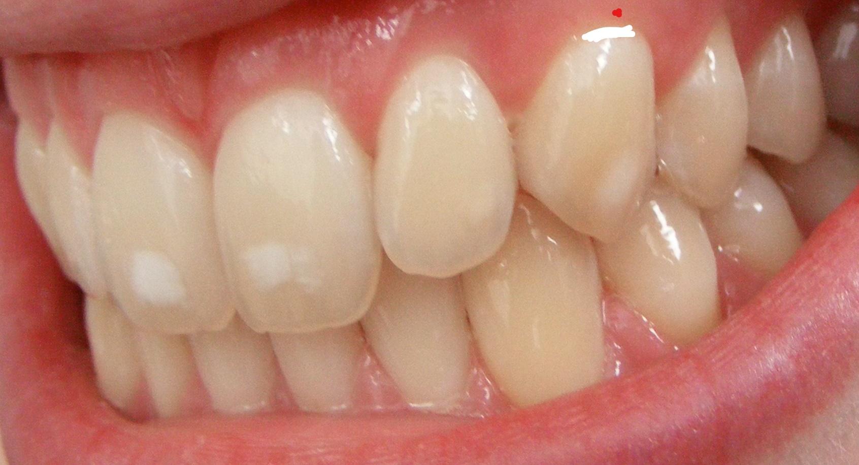 Weißer Punkt Zahnfleisch Baby