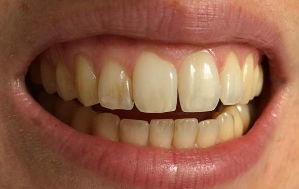 Grau verfärbt zahn Zahnverfärbung