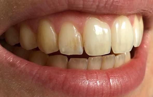 Zähne Verfärbt