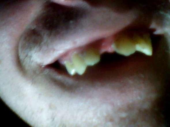 Zahnlücke was tun vorne gegen Zahnlücke schließen