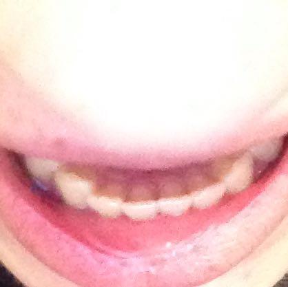 Lassen schiefe zähne richten Zahnfehlstellung: Wie