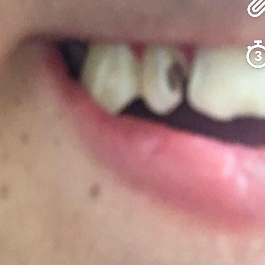 Zahn Schmerzt Beim Draufbeißen