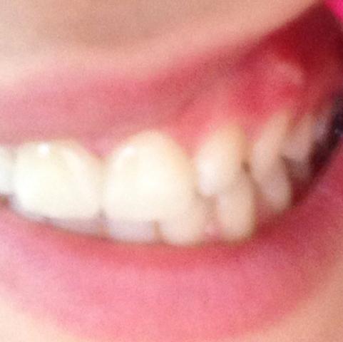 Das weiße da oben. - (Zähne, Zahnfleisch Zahn)