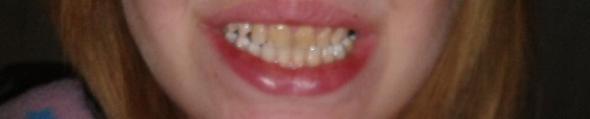 gelbe zähne - (Zähne, Zahnarzt, gelbe Zähne)