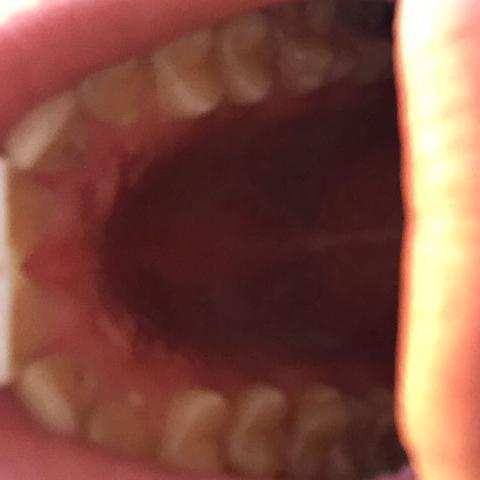 Das sind die beiden Löcher an den Schneidezähnen..! - (Gesundheit, Schmerzen, Zahnarzt)