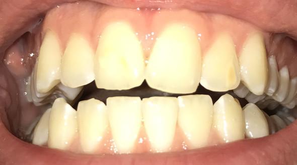 A3 bilder zahnfarbe Welche Zahnfarbe