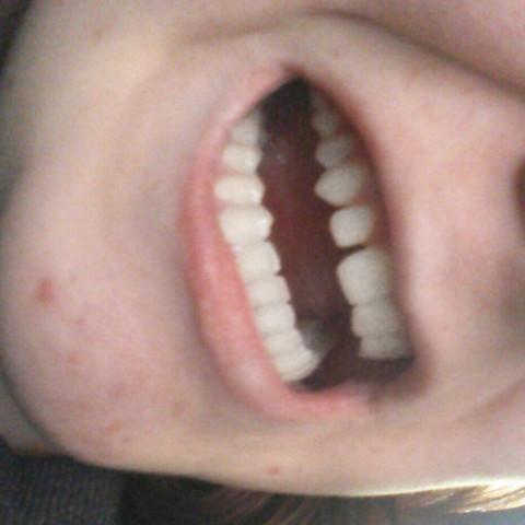 Bild 1 - (Zähne, Fehlstellung)