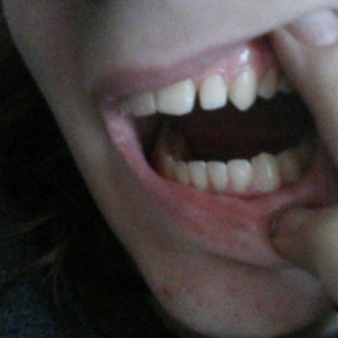 Bild 2 - (Zähne, Fehlstellung)