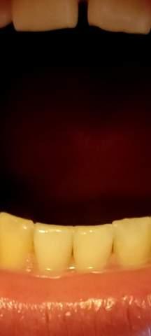Zahnfleisch baut sich leicht ab?