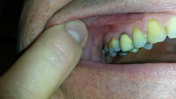 Zahnfleisch fühlt sich an einer Stelle etwas geschwollen