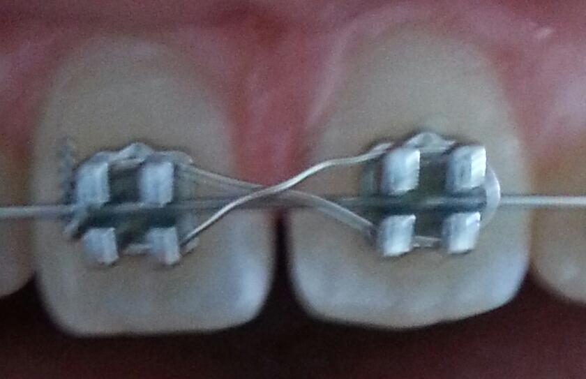 Zahnfleisch Wieder Gewachsen