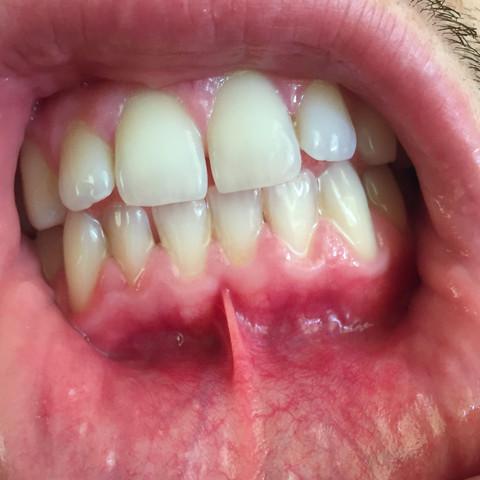 Wie man Zahnfleisch natürlich nachwächst