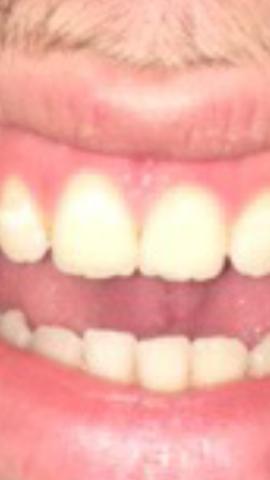 Hier ein Bild  - (Gesundheit, Zähne)
