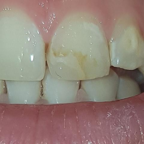- (Zahnarzt, Zahnfüllung)