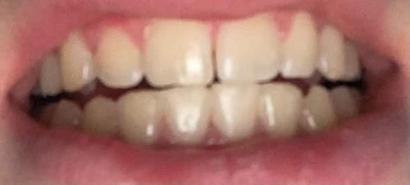 Zahnlücke?