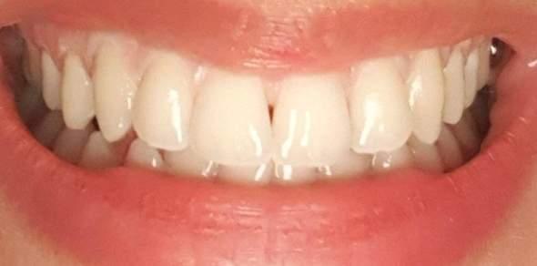 Zahnlücke komisch?