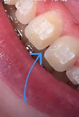 Zahnlücke nur bis zur Hälfte vom Zahn?