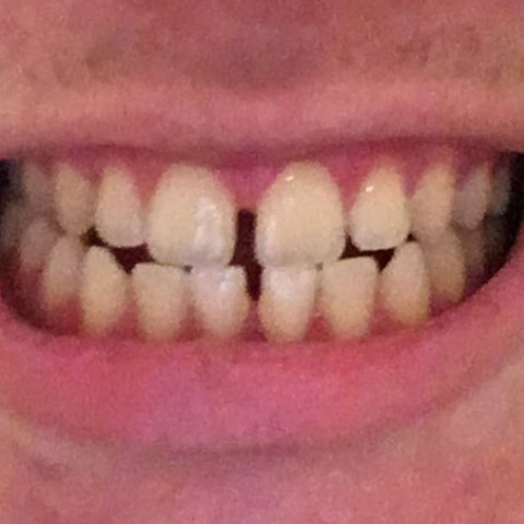 Zahnlücke schließen (Foto), Dauer?