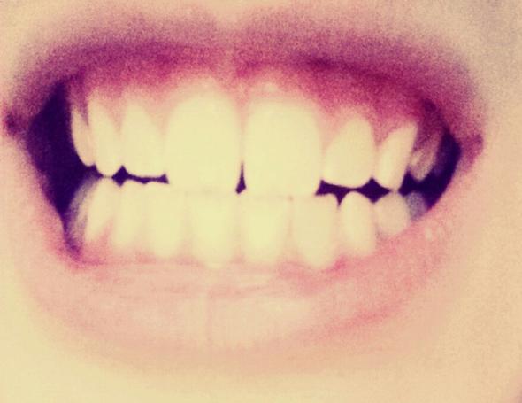 :)  - (Gesundheit, Zähne, Zahnmedizin)