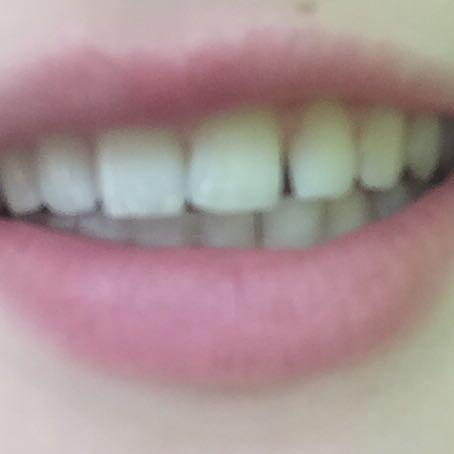 Da ist die Lücke(ich weiß gibt schlimmeres aber mich nervt das). - (Arzt, Zähne, Zahnspange)