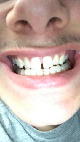 - (Zähne, Zahnlücke)