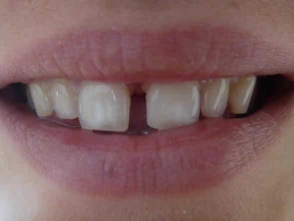 Zähne - (Zähne, Zahnspange, Zahnlücke)