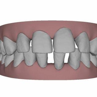 So sehen meine Zähne aus, DIE UNTEREN SIND ABER GERADE UND HABEN KEINE LÜCKEN!  - (Zähne, Zahnarzt, lachen)