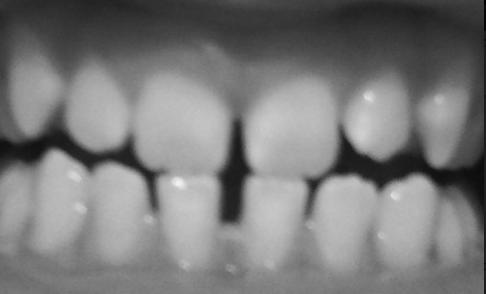 Zähne - (Kieferorthopädie, Zahnlücke)