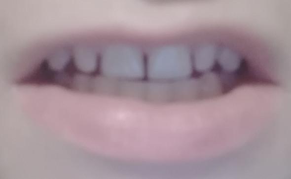 Zahnlücken nach 3 Jahren feste Zahnspange? (Gesundheit und