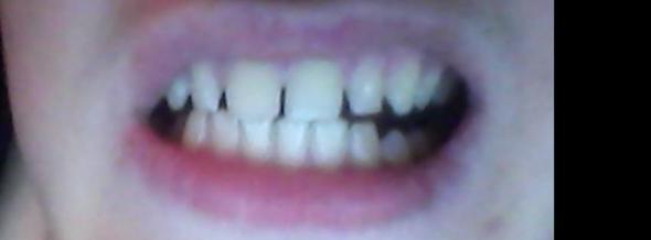 So sieht das aus :P - (Zähne, Zahnarzt, Zahnspange)