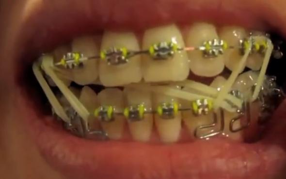 Zahnspange gummis wie lange tragen