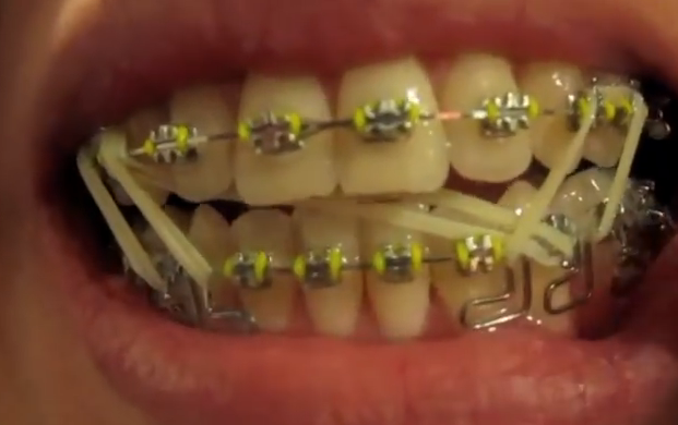 zahnspange , gummies , außenbogen (Gesundheit, Zähne, Kiefer)
