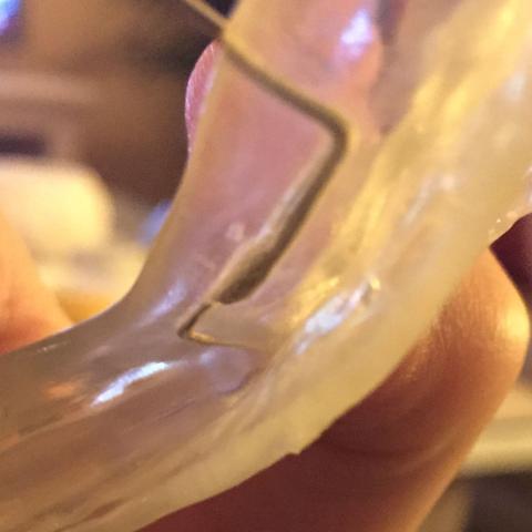 Hier die Zahnspange mit dem bruch - (Zahnspange, Lose)