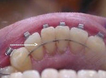 Meine raus will ich zahnspange Zahnspange raus