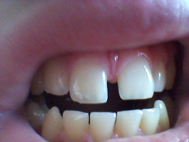 Zahnspange Ja Oder Nein