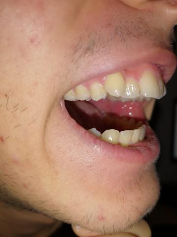 Zahnspange mit 19 und schmerzen wegen krummezahn zahlt die