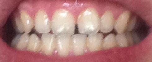 Zähne - (Zahnarzt, Zahnspange, Krankenversicherung)