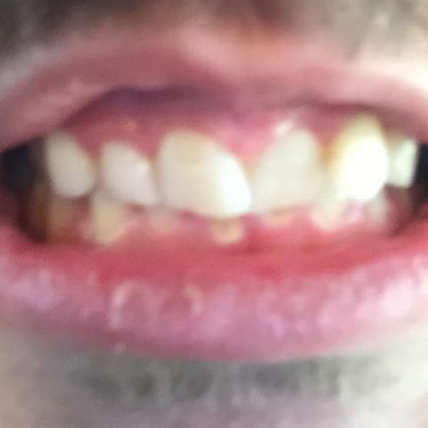 Besonders die oberen mittleren Schneidezähne sind schief  - (Medizin, Zähne, Zahnarzt)