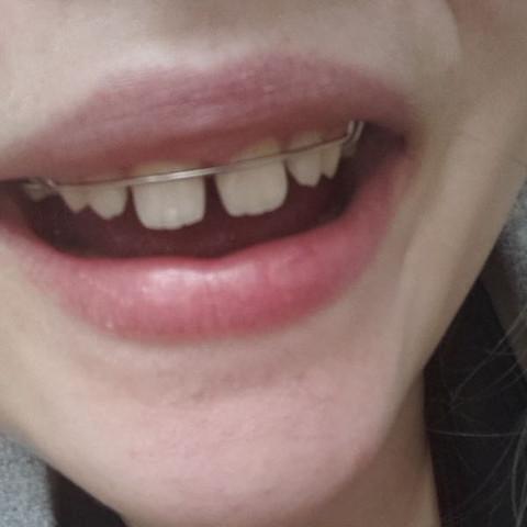 So etwa sieht es auch bei mir aus - (Zähne, Spange)