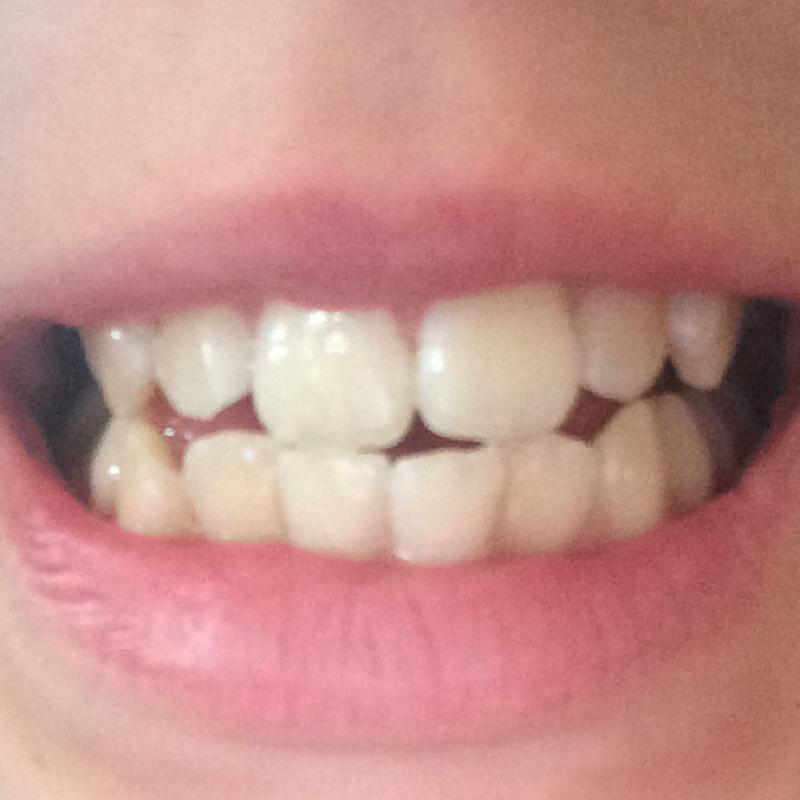wie werden meine zähne weißer