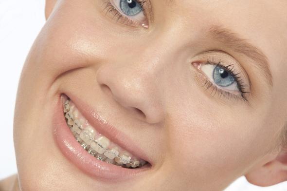 Weisse Breckets  - (Gesundheit, Zahnspange)