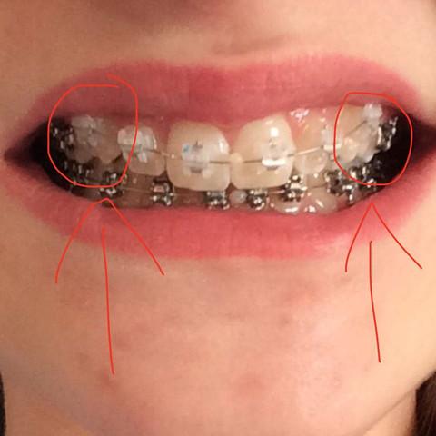 Das sind die Eckzähne die so weh tun - (Zähne)