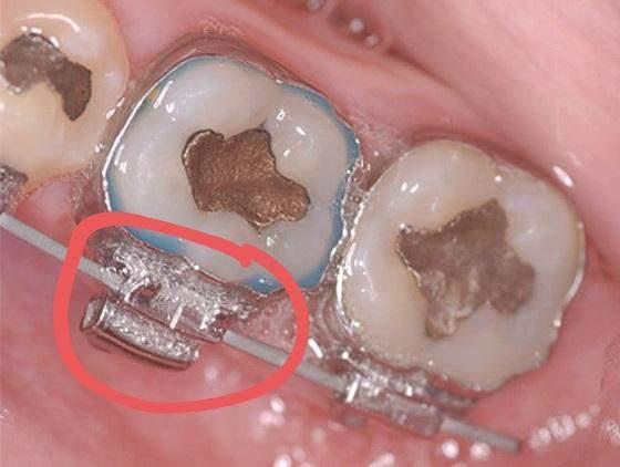 Zahnspangen wachs ausgegangen - was tun?