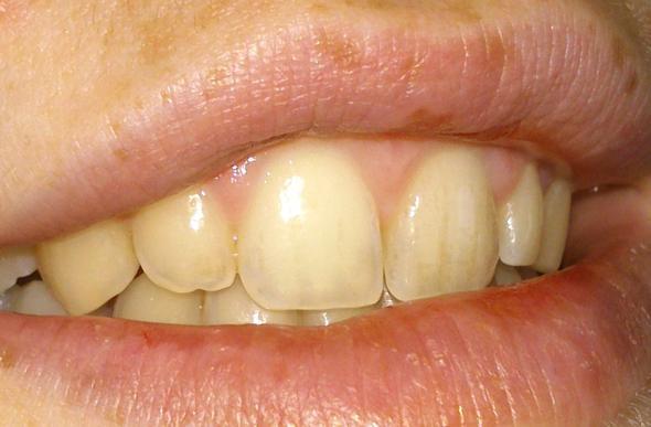 Zahnverfärbungen. Was tun? (Zähne, gelb, verfärbt)