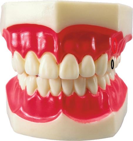 Beispiel - (Schmerzen, Zahnfleisch)