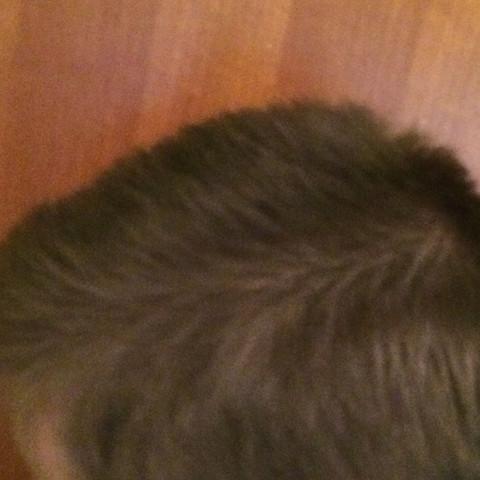Da sieht man sie - (Haare, Kopf, Haarausfall)