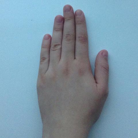 Links (zeigefinger größer als Ringfinger) - (Angst, Krebs, Länge)